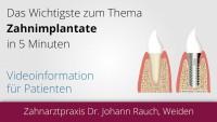 Implantate Weiden - Zahnarzt Dr. Johann Rauch